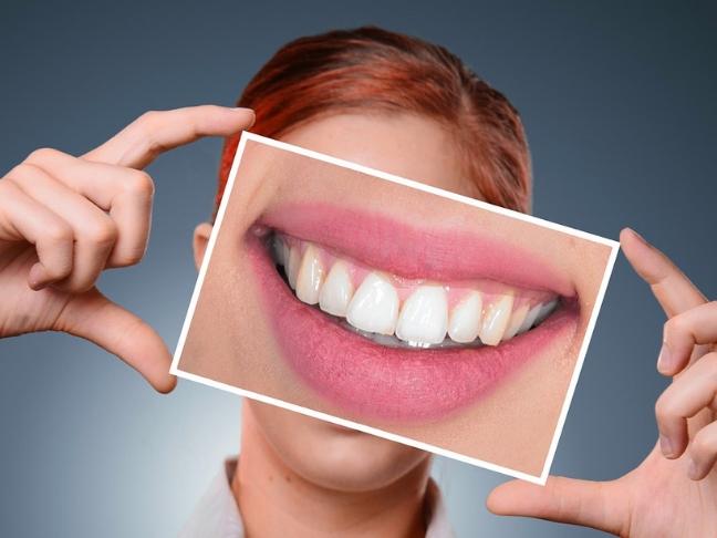 teen's dental habits